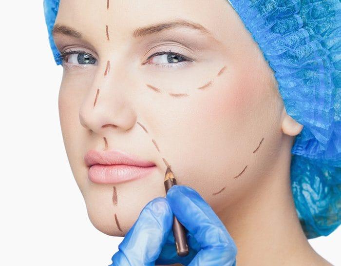 chirurgia non ablativa metodo plexr estetica busto arsizio legnano busto garolfo